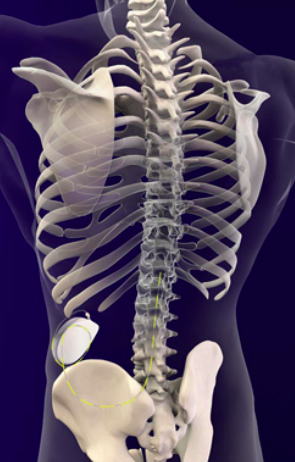 重度痙縮に対する治療、ITB療法について