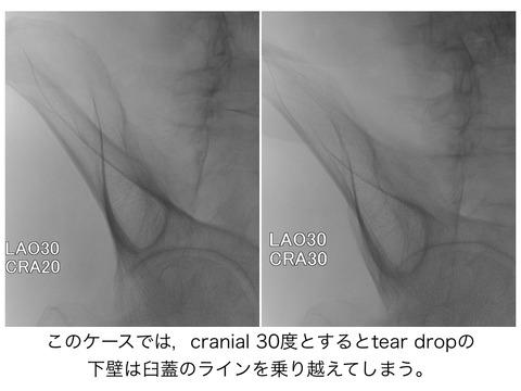 SAI screw刺入のポイント。tear dropの映し方について。