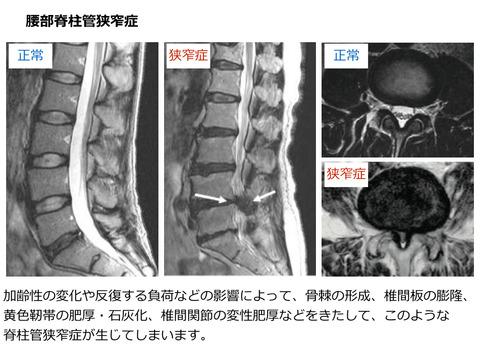 腰部脊柱管狭窄症、腰椎変性すべり症とは