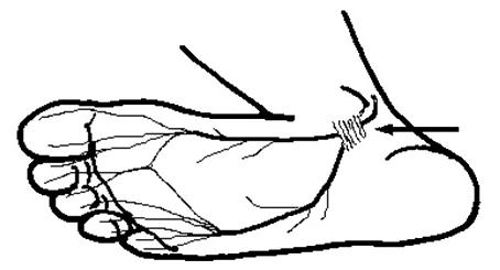 足のしびれ、足根管症候群について、鑑別に挙がっているでしょうか?