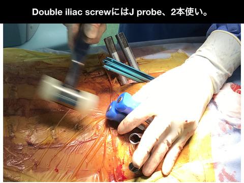 腸骨スクリュー2本入れにはJ probe2本使いがオススメです