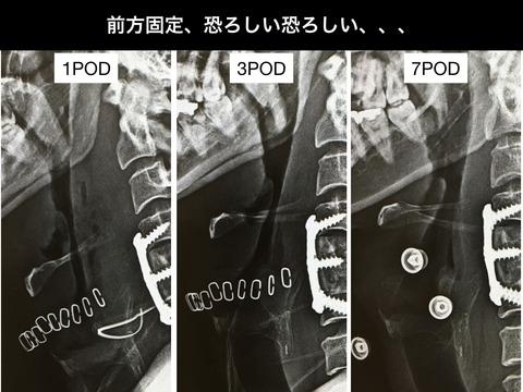 やっぱり頸椎前方固定は怖い。