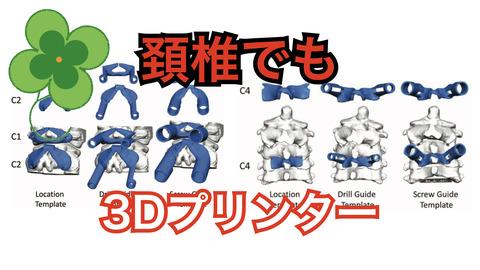 頚椎後方固定での3D患者適合型ドリルガイドSGTについて