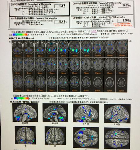 MRIを使って、早期アルツハイマー型認知症をチェック。VSRAD。
