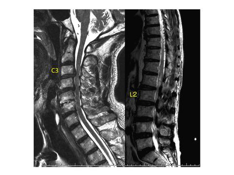 画像所見は診察所見との整合性を確かめて。腰椎疾患として治療されていた硬膜動静脈瘻dural AVFより。