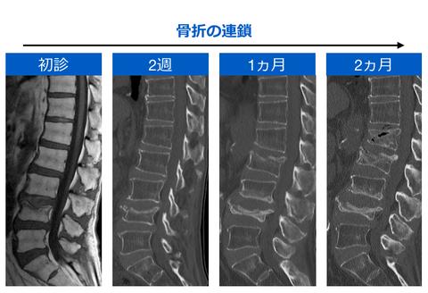 骨粗鬆症性椎体骨折の負の連鎖