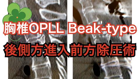 Beak-type 胸椎OPLL、加藤仁志先生の動画が俊逸 -Quotomy必見-
