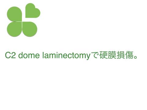 C2 dome laminectomyで硬膜損傷。さあ、どうする?