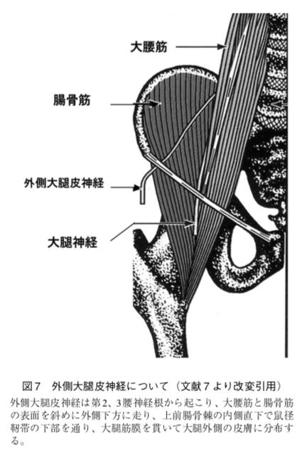 絞扼性末梢神経障害を鑑別しよう。大腿の感覚異常、meralgia parestheticaについて