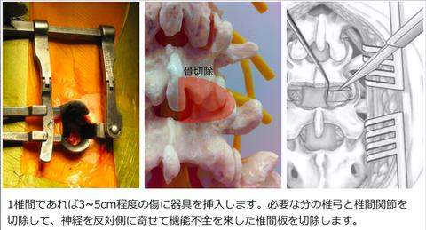低侵襲腰椎後方椎体間固定術(MIS-T(P)LIF)を受ける方へ