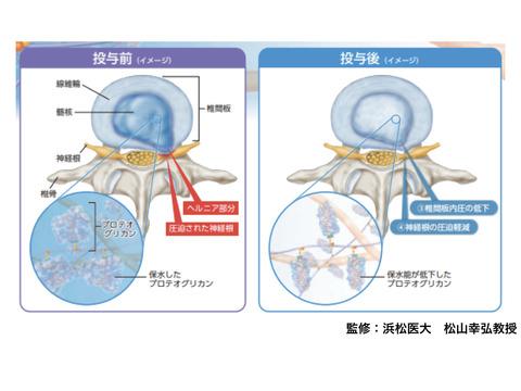 コンドリアーゼ椎間板内注入療法 説明および同意書 ひな形