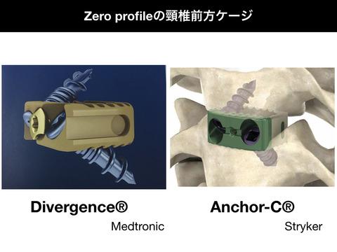 アンカーC、ゼロプロファイルの頸椎前方ケージ