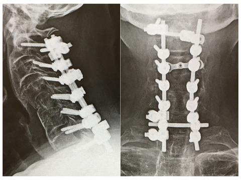 頸椎後方固定のスクリューヘッドの配列・ロッド締結は術前の検討がすべて