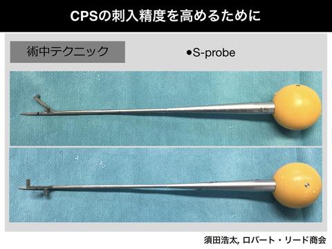 頚椎椎弓根スクリューの精度を高めるSプローブ!!