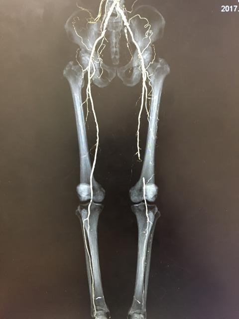 間欠性跛行で手術する前にABIでのスクリーニングは大切かな