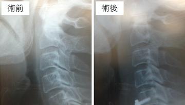 頚椎前方固定術の気道関連合併症のリスク管理
