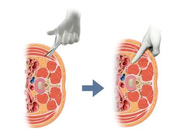 XLIFの後腹膜腔アプローチの理解のために。後傍腎腔?