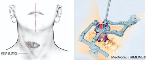 頚椎前方除圧固定術を受ける方へ