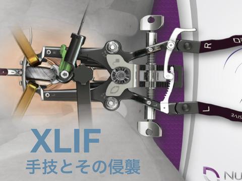 XLIF再開のガイドライン