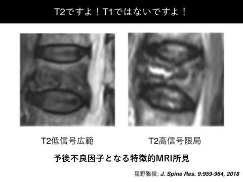 MRIで予後不良因子を持つ骨粗鬆症性椎体骨折には早期BKP介入が有効