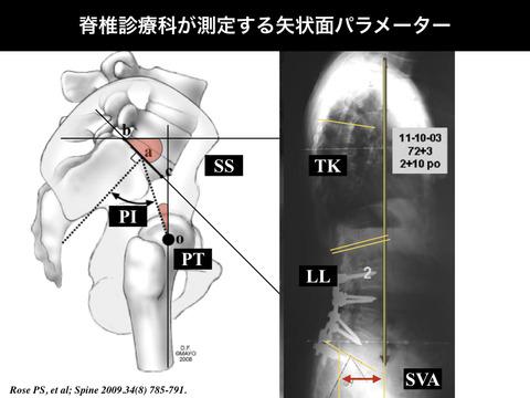 脊椎の矢状面バランスの測定パラメーターについて