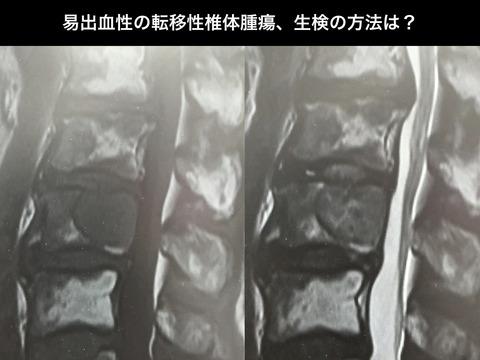 易出血性の転移性椎体腫瘍の生検の方法