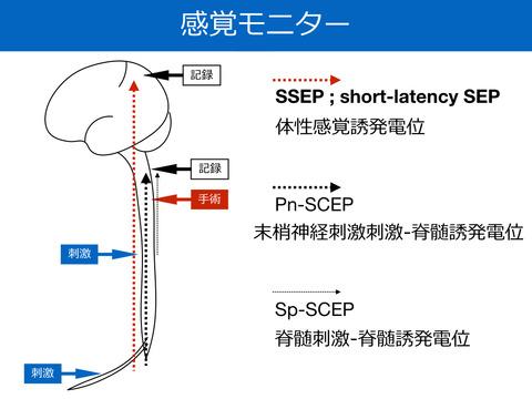 感覚誘発電位、SEPについて