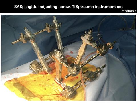 脊椎破裂骨折の後方法による低侵襲手術