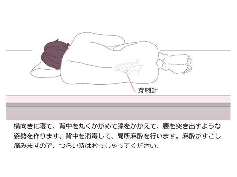 脊髄造影(ミエログラフィー)検査を受ける方へ
