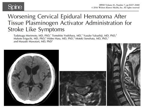 特発性頸髄硬膜外血腫を早期に診断するポイント
