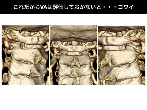 これだから椎骨動脈は評価しておかないと・・・