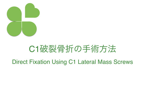 C1破裂骨折の手術方法、Direct Fixation Using C1 Lateral Mass Screws