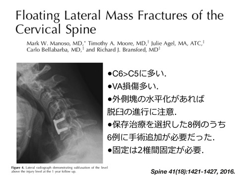 floating lateral mass.005