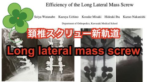 新しい中下位頚椎の後方固定法、long lateral mass screwについて