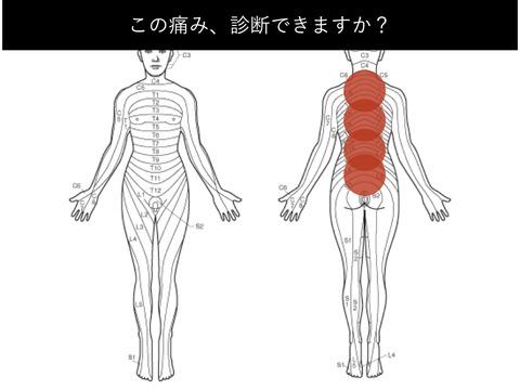 この腰痛の原因、わかりますか??