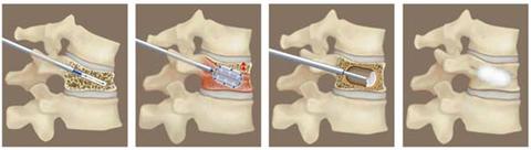 経皮的バルーン椎体後弯矯正術:BKP(balloon kyphoplasty)を受ける方へ