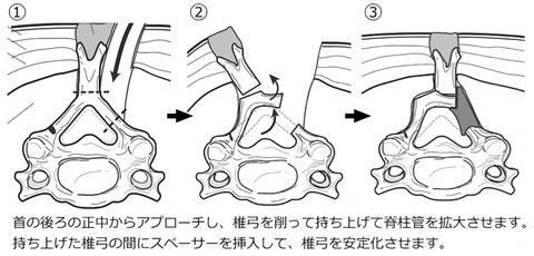頚椎椎弓形成術を受ける方へ