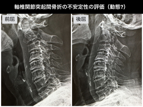ハングマン骨折(軸椎関節突起間骨折)の不安定性の評価の方法って?