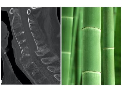 強直性脊椎骨増殖症(ASH)と強直性脊椎炎(AS)の違い
