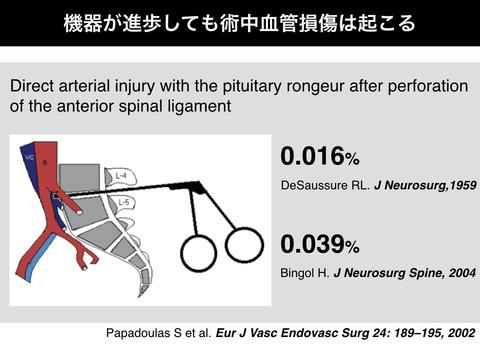 昔も今も、腰椎椎間板ヘルニア切除術での血管損傷の発生率は変わらない!?