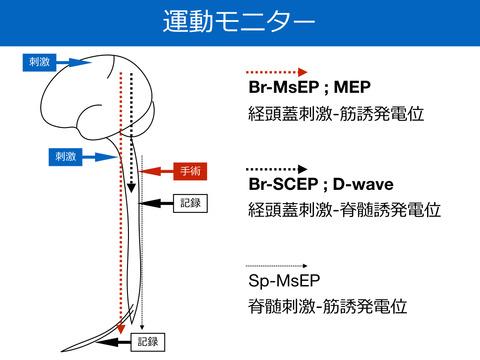 運動モニター、MEPとD-waveについて