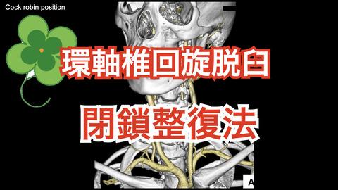 成人外傷性環軸椎回旋脱臼の全身麻酔下での閉鎖整復手技