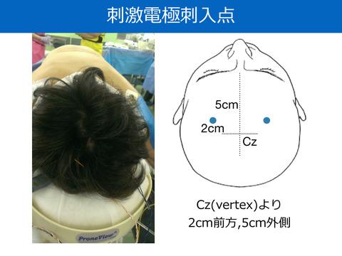 MEPの経頭蓋刺激電極の刺入点について