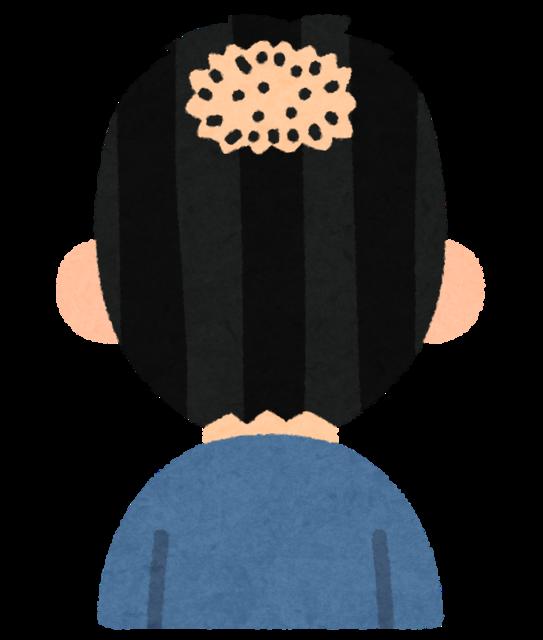 【朗報!】ハゲ頭に毛が生えた!電気刺激の発毛技術 米大学が開発[R1/10/6]