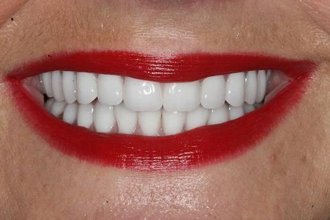 【画像あり】歯の治療に900万円使った結果wwwwwwwwwwwwwwwwwwwwwww