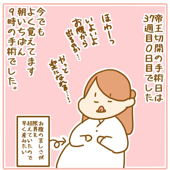 双子妊娠⑲ついに出産!徹夜で挑む帝王切開!01