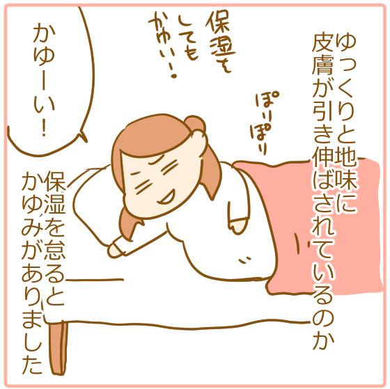 ⑦妊娠線予防03
