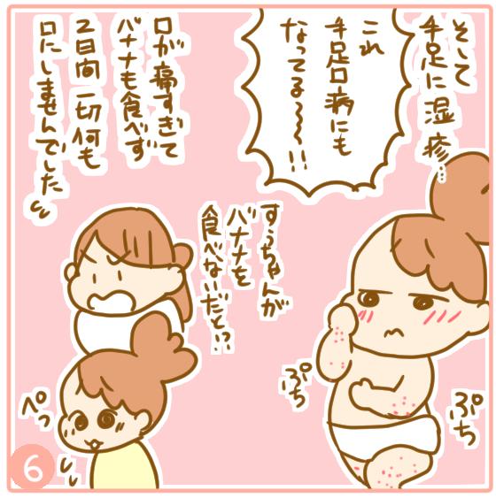 溶連菌と手足口病07