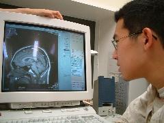 生命科学の現在・パート6(12)ヤマサワくんの脳のMRI画像