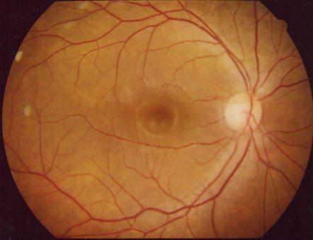 感染症の病理学的考え方  視神経乳頭陥凹は緑内障の初期徴候のことがあるコメントトラックバック                        砂川恵伸